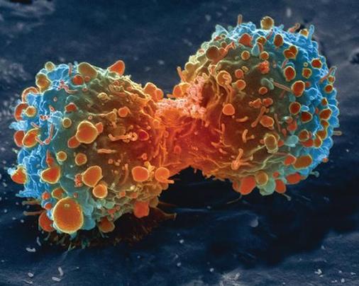Elektronový výzkum odborníků zbrněnské techniky může zrychlit diagnostiku rakoviny