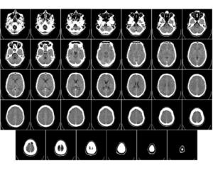 Mladý neurolog zBrna vymyslel, jak přesněji a včas diagnostikovat mrtvici