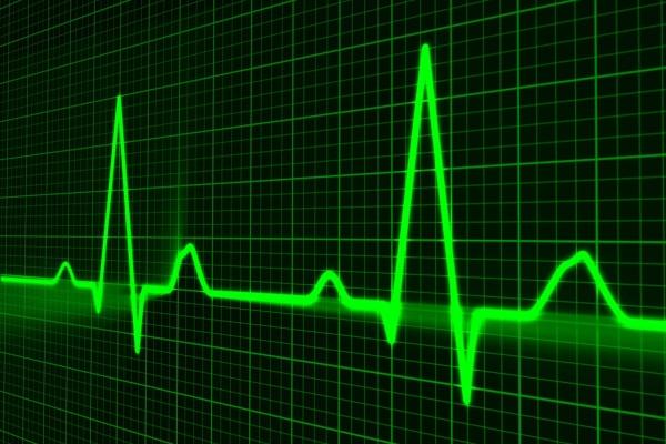 heart-cardiogram w