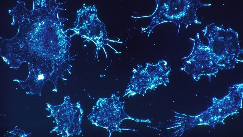 cancer-cells-rakovina